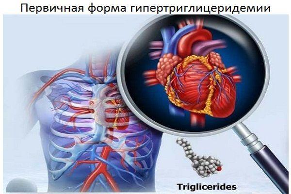 Первичная форма гипертриглицеридемии