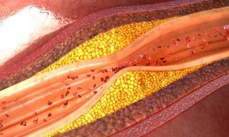 Атеросклеротическое поражение дуги аорты