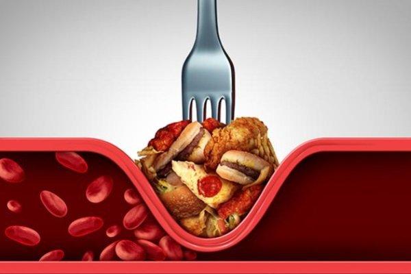 Злоупотребление жирной пищей – фактор риска атеросклероза