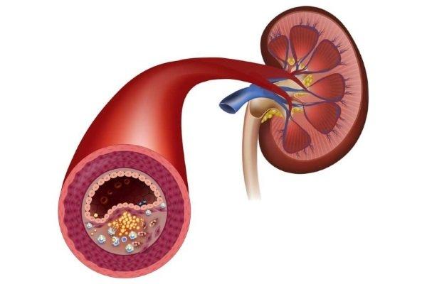 Атеросклероз сосудов почек