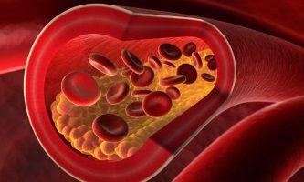 По каким причинам повышается холестерин у женщин разного возраста
